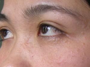 Phải làm sao chữa khỏi mụn thịt quanh mắt ?