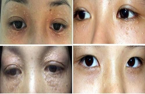 Trị mụn thịt bằng laser có ảnh hưởng tới mắt không?