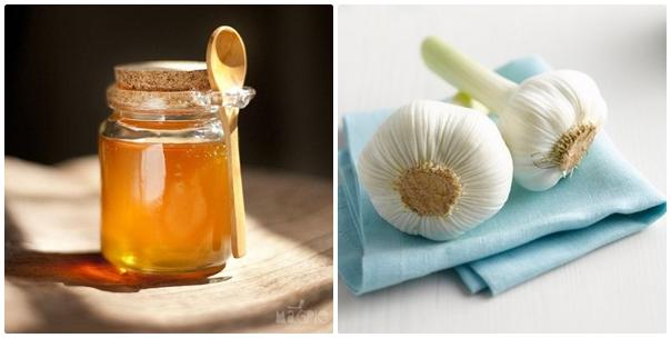 Bạn có thể trị mụn thịt bằng tỏi kết hợp với mật ong