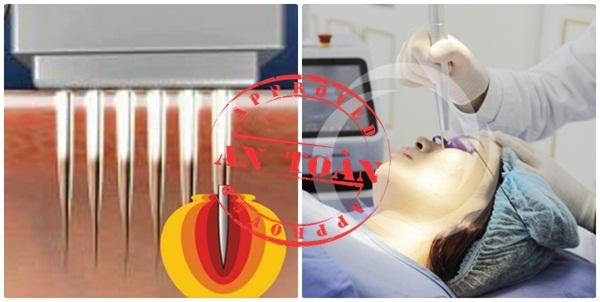 Địa chỉ trị mụn thịt hiệu quả cần ứng dụng công nghệ điều trị tiên tiến
