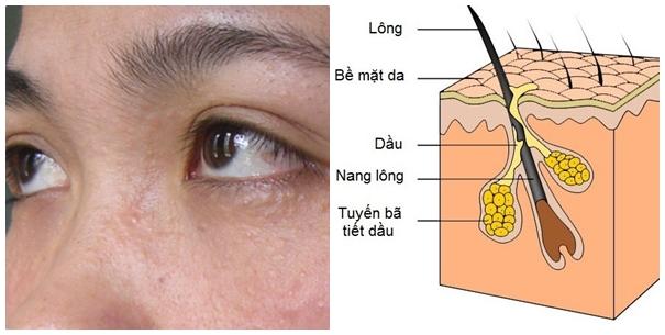 Nguyên nhân gây ra bệnh mụn thịt quanh mắt bắt nguồn từ u tuyến keo