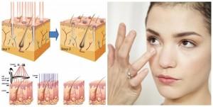 Mụn thịt quanh mắt có khó chữa trị không?