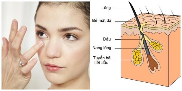 Những nốt mụn thịt thừa nếu không chữa trị dứt điểm có thể lây lan sang các vùng da khác