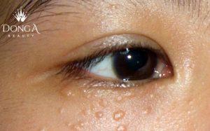 Xóa mụn thịt quanh mắt bằng cách nào hiệu quả và an toàn nhất?