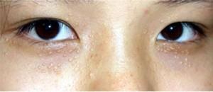 Mụn trắng quanh mắt có phải là mụn thịt không?