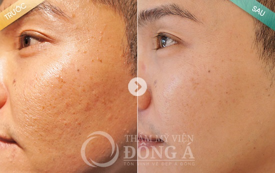 Kết quả trị mụn thịt của anh Nguyễn Quế Võ - Đã điều trị tại TMV Đông Á