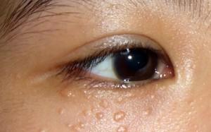 Cách trị mụn thịt quanh mắt bằng laser siêu xung thực hiện như thế nào?
