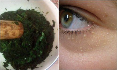 Hiệu quả tới 95% với cách trị mụn thịt ở mắt do các bác sỹ chia sẻ 2