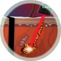 Laser siêu xung trị mụn thịt vĩnh viễn