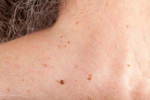 Bị nổi mụn thịt ở ngực phải làm sao? Cách điều trị như thế nào?