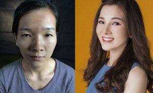 5 ca phẫu thuật thẩm mỹ thành công của Việt Nam năm 2017