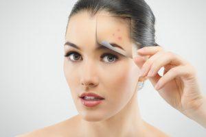 4 lí do bạn nên điều trị mụn thịt bằng Laser siêu xung