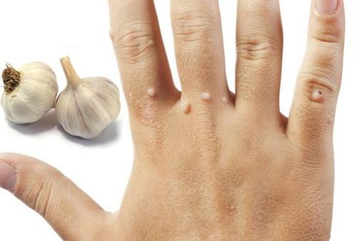 Cách trị mụn cơm bằng tỏi cực kỳ đơn giản và hiệu quả 6